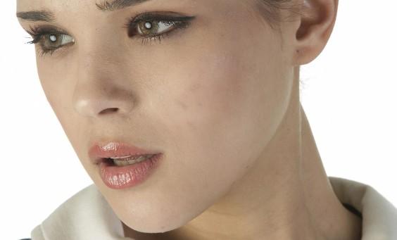 Cicatrici da acne cause e prevenzione