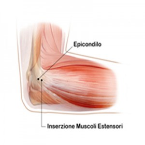 Epicondilite 1