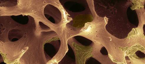 osteoporosi-493x218